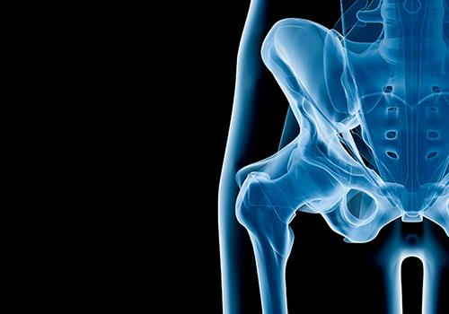 prótesis defectuosas